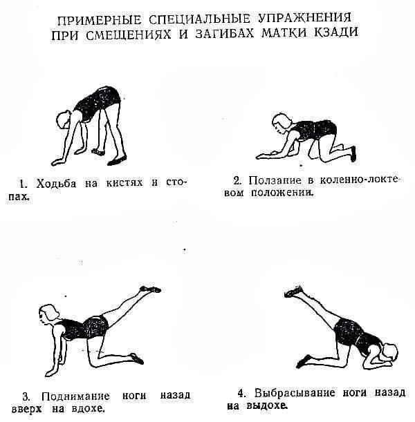 Седловидная матка - что это? отзывы при беременности, позы для зачатия - medside.ru