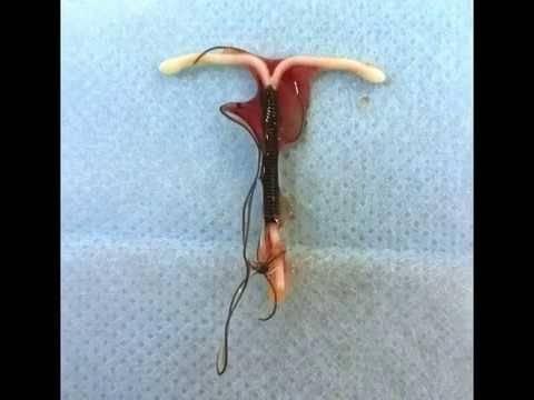 Удаление вмс (внутриматочной спирали) в гинекологии: больно ли делать и сколько длится операция, показания и осложнения