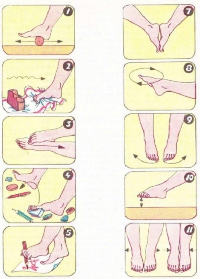 Гимнастика при артрозе стоп: комплекс упражнений
