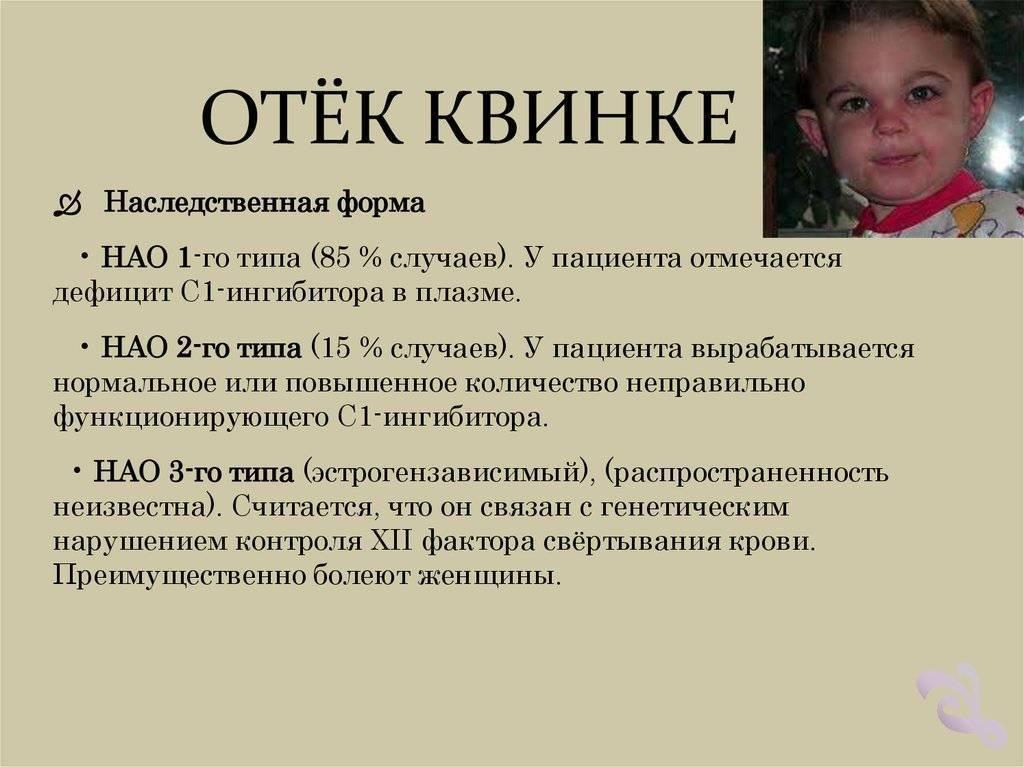 Симптомы отека Квинке у детей, первая неотложная помощь и методы лечения