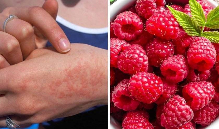 Сыпь при дисбактериозе: причины и симптомы у детей и взрослых. бифилакт биота | биота