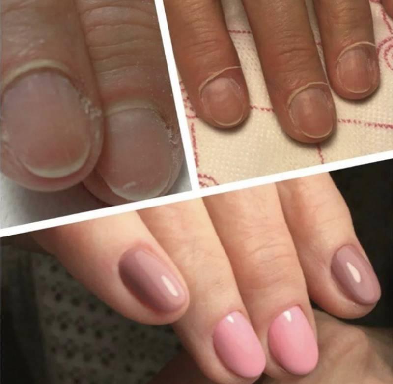 Можно ли беременным наращивать ногти и делать маникюр » womanmirror можно ли беременным наращивать ногти и делать маникюр