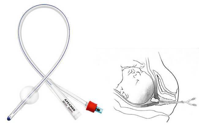 Диатермоэлектрокоагуляция (дэк) шейки матки