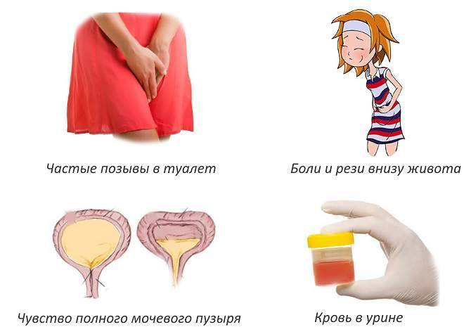 Особенности цистита после родов: симптомы и причины, лечение и профилактика