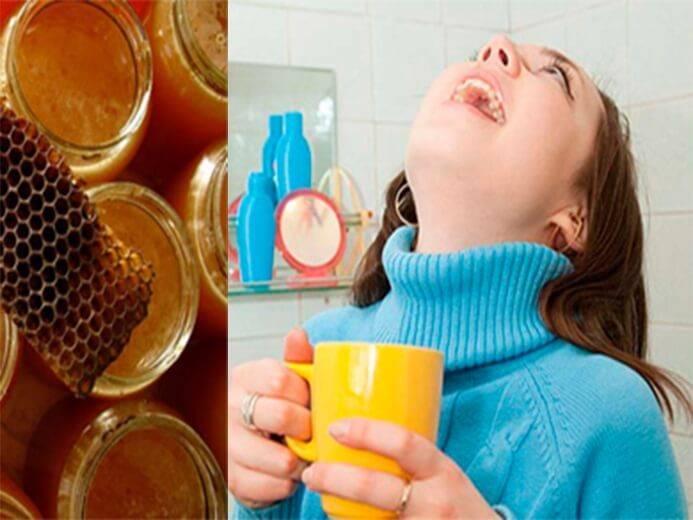 Глоссит: симптомы, лечение, народные средства   глоссит у детей