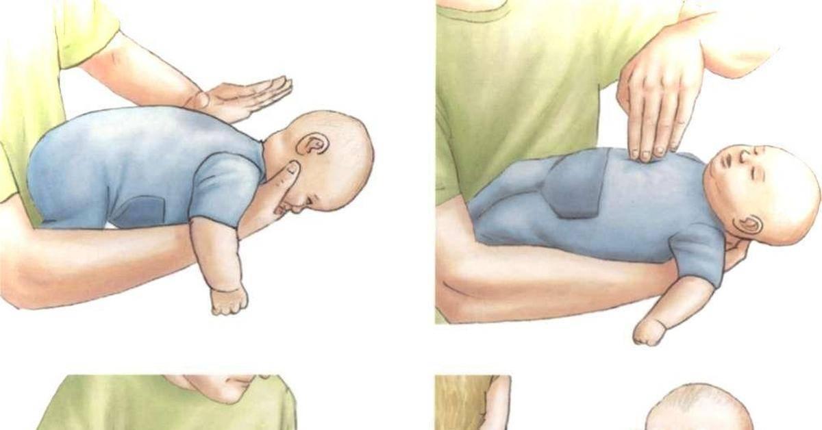 Ребенок подавился: что делать? – напоправку