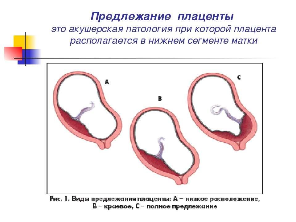 Предлежание плаценты — большая медицинская энциклопедия