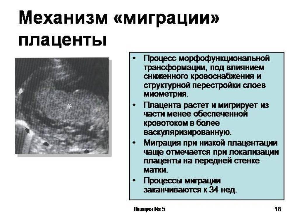 Что такое плацента - причины, диагностика и лечение