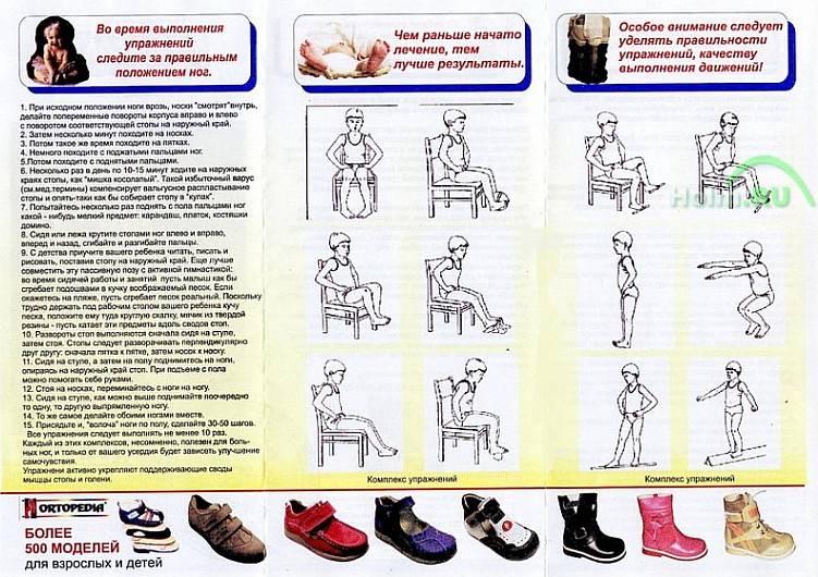 Плоско-вальгусная деформация стопы – как лечить - beautyvertebro.com