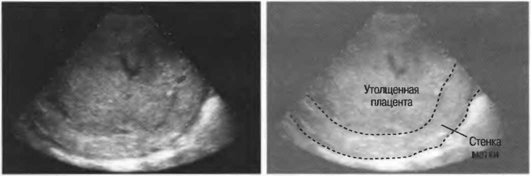Синдром потери плода. преэклампсия. плацентарная недостаточность и задержка роста плода. клинический случай.