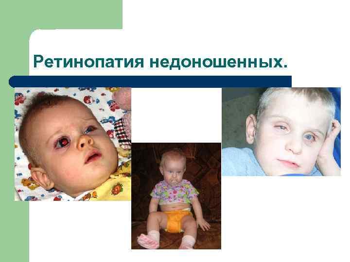 Диабетическая непролиферативная ретинопатия сетчатки - энциклопедия ochkov.net