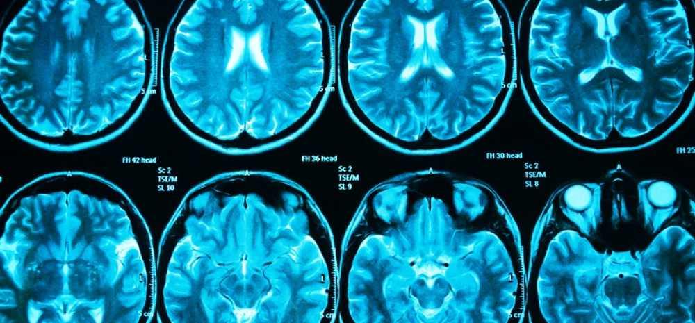 Мрт головного мозга ребенку: особенности диагностики