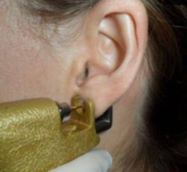 Чем обрабатывать уши после прокола пистолетом ребенку и взрослому