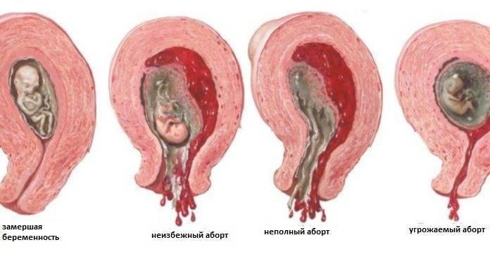 Жизнь после медикаментозного аборта: овуляция, менструация, секс и беременность