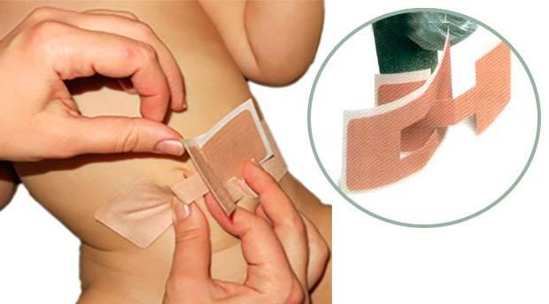 Пластика пупка (умбиликопластика) - фото до и после операции!