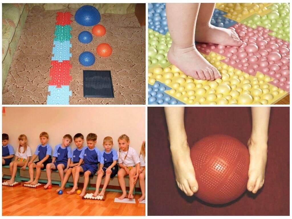 Вальгусная деформация стопы у детей лечение и профилактика