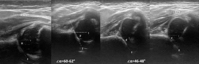 УЗИ тазобедренных суставов у новорожденных и грудничков: норма, расшифровка