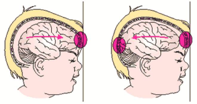 Расширение желудочков головного мозга у новорожденных, последствия асимметрии у грудничков