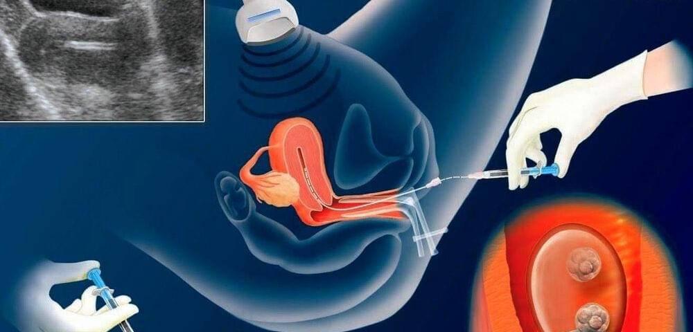 Донорские эмбрионы – эко: результативность, отзывы | перенос донорского эмбриона в клинике «линия жизни», москва
