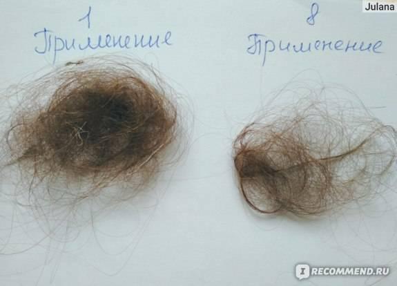 Выпадают волосы при беременности на ранних и поздних сроках: причины и лечение