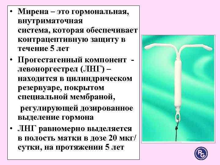 Мирена (гормональная спираль) - установка, удаление, цена в москве