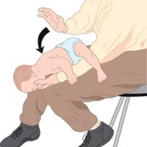 Подавился (механическая асфиксия). причины, первая помощь, возможные последствия