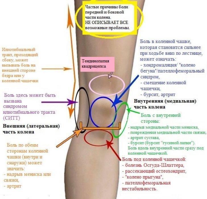 Боль в колене при сгибании: причины, профилактика
