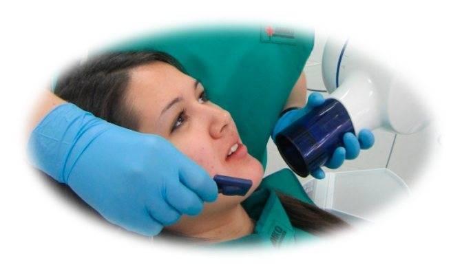 Лечение зубов при беременности и вскармливании в ярославле