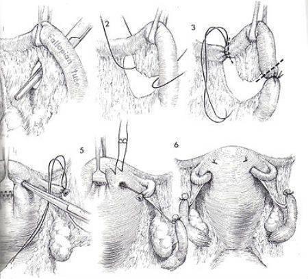 Женская стерилизация: перевязка маточных труб   | материнство - беременность, роды, питание, воспитание