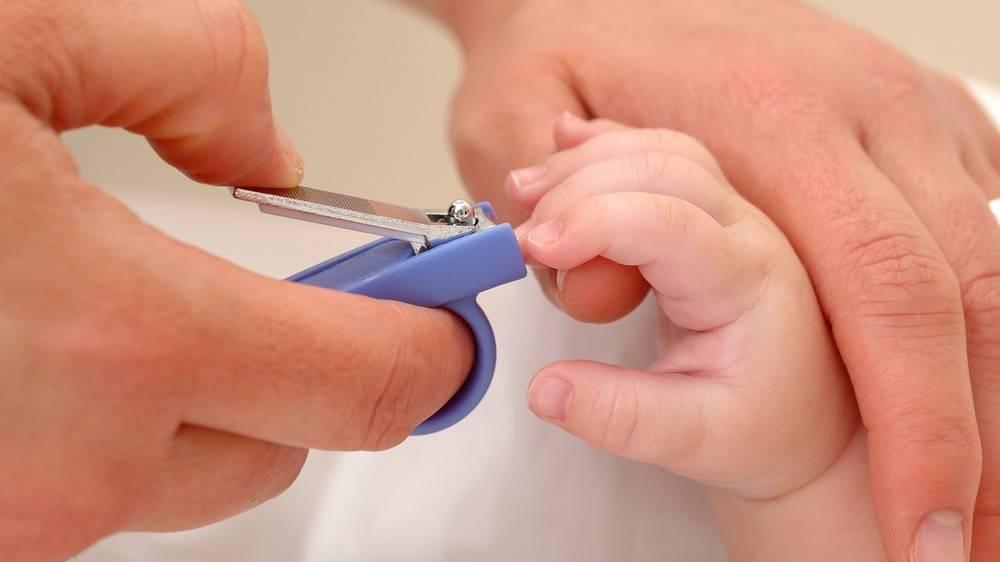 Как подстричь ногти новорожденному (проблема вросшего ногтя у грудничка)