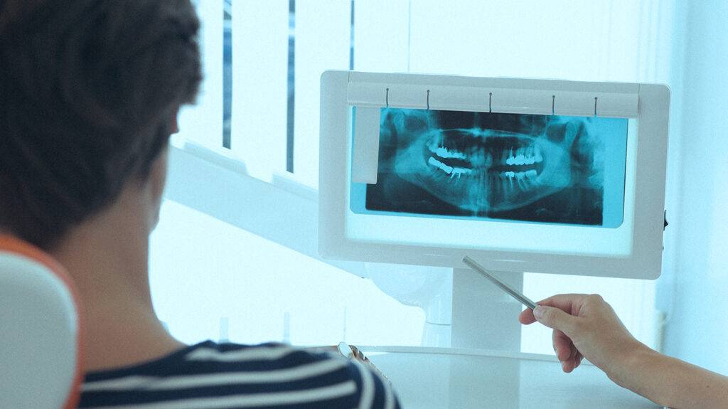 Доза облучения при рентгене, кт, мрт и узи: ну сколько можно? – напоправку