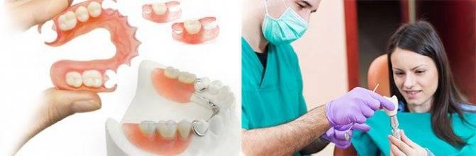 Можно ли лечить зубы при стоматите?