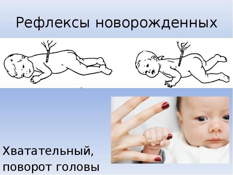 Эффект моро у младенцев до какого возраста