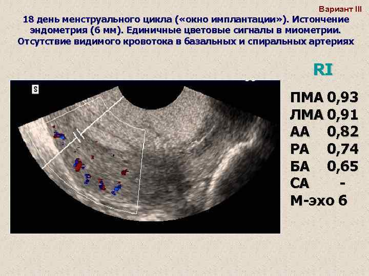 Криопротокол эко — цена, схема, подробно по дням | криопротокол на згт, в естественном цикле в клинике «линия жизни» в москве