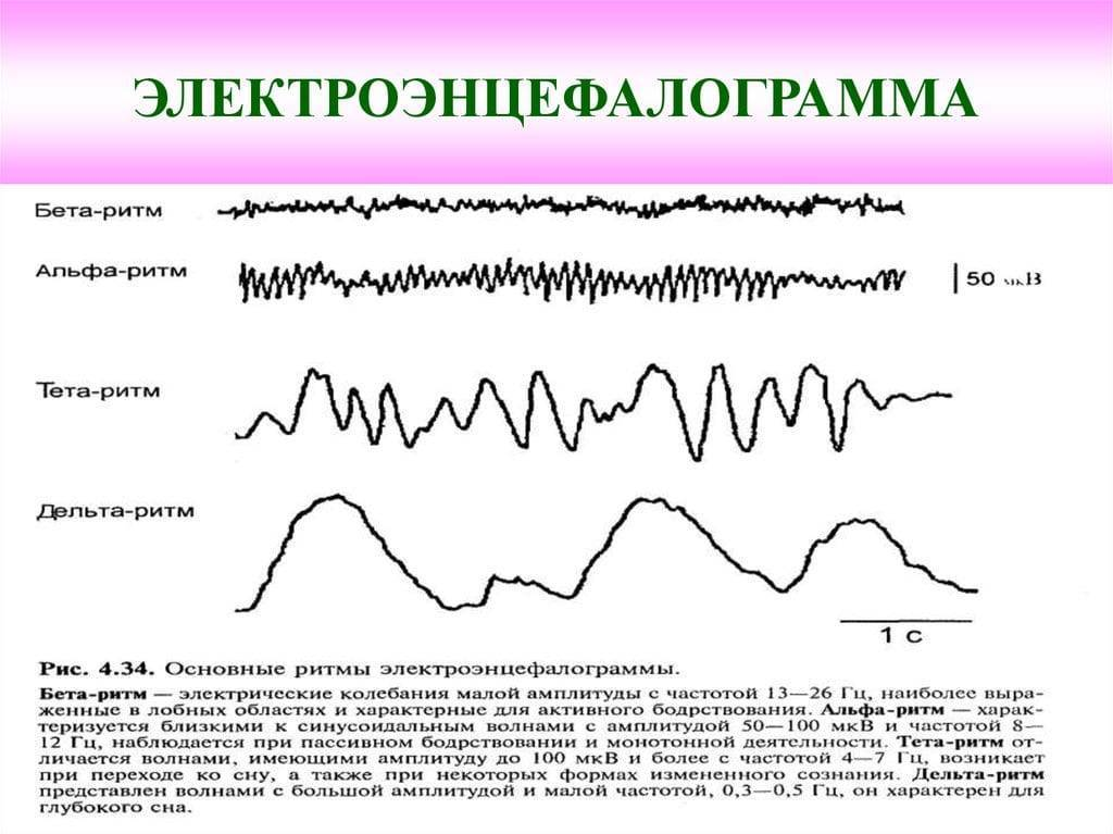 ЭЭГ головного мозга ребенку: что показывает энцефалограмма - расшифровка, норма, нарушения