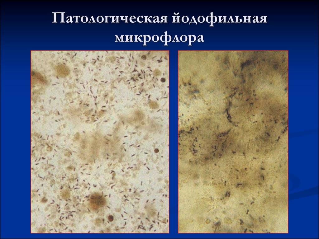 Йодофильная флора в кале у ребенка: что это значит, диагностика, лечение