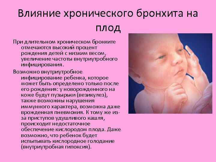 Как подобрать препараты для лечения орви при беременности — ответы на 12 актуальных вопросов