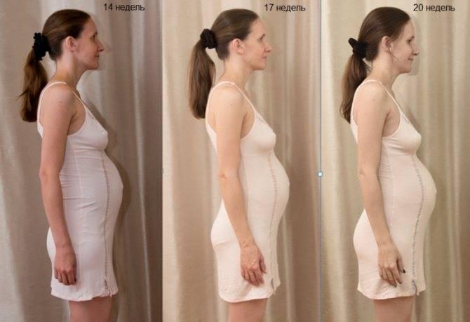 Когда начинает расти грудь при беременности: сроки увеличения