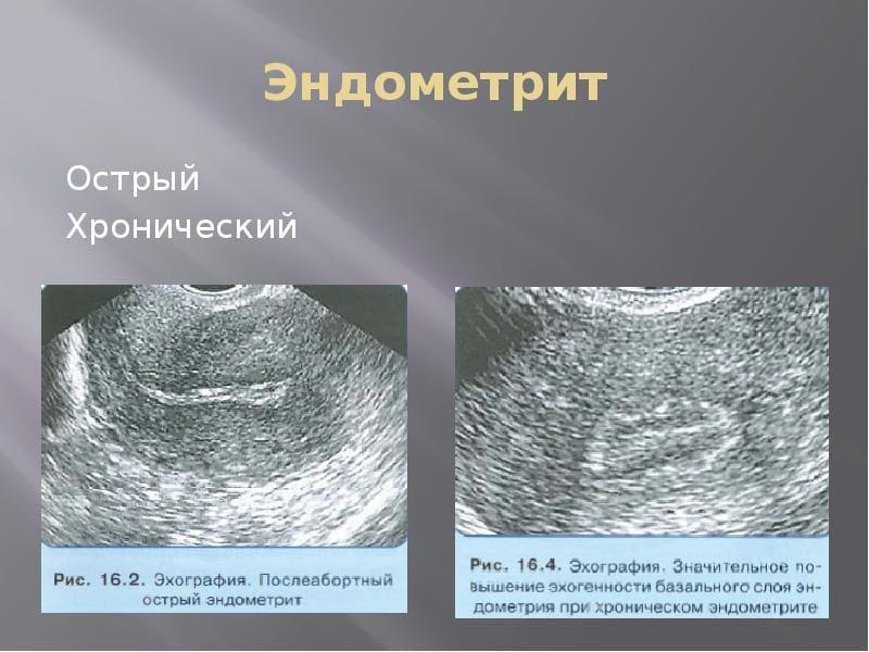 Гинекологическое выскабливание полости матки