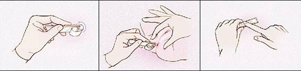 Соскоб на энтеробиоз: как берут у детей анализ, как сдавать мазок на яйца глист?