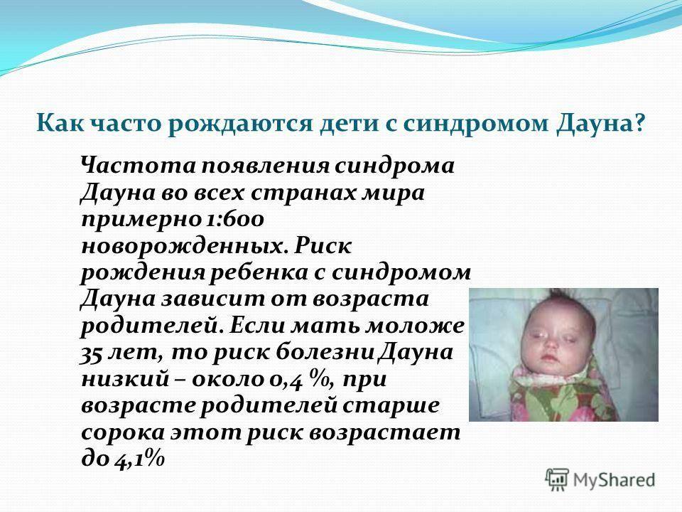 Синдром дауна                (болезнь дауна)