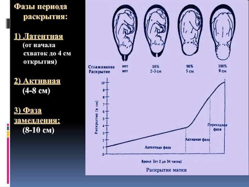 Раскрытие шейки матки на 1 или 2 пальца. как ускорить раскрытие перед родами   азбука здоровья