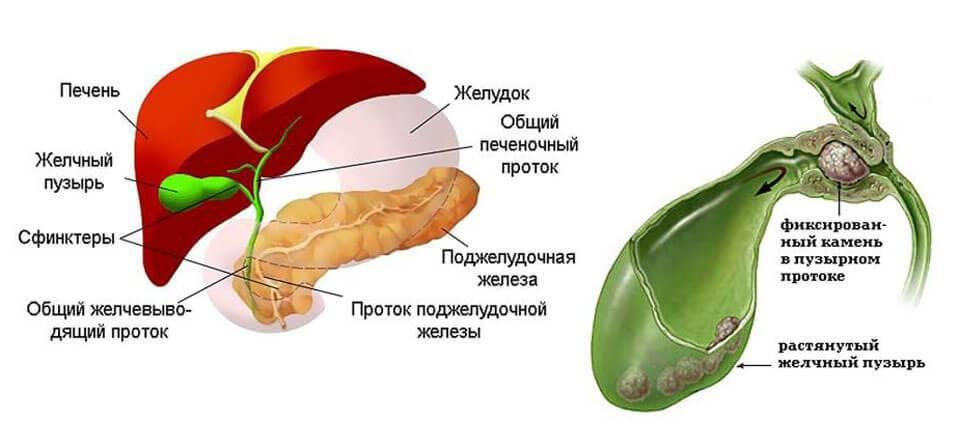 Желчегонные средства и препараты — холеретики и холекинетики