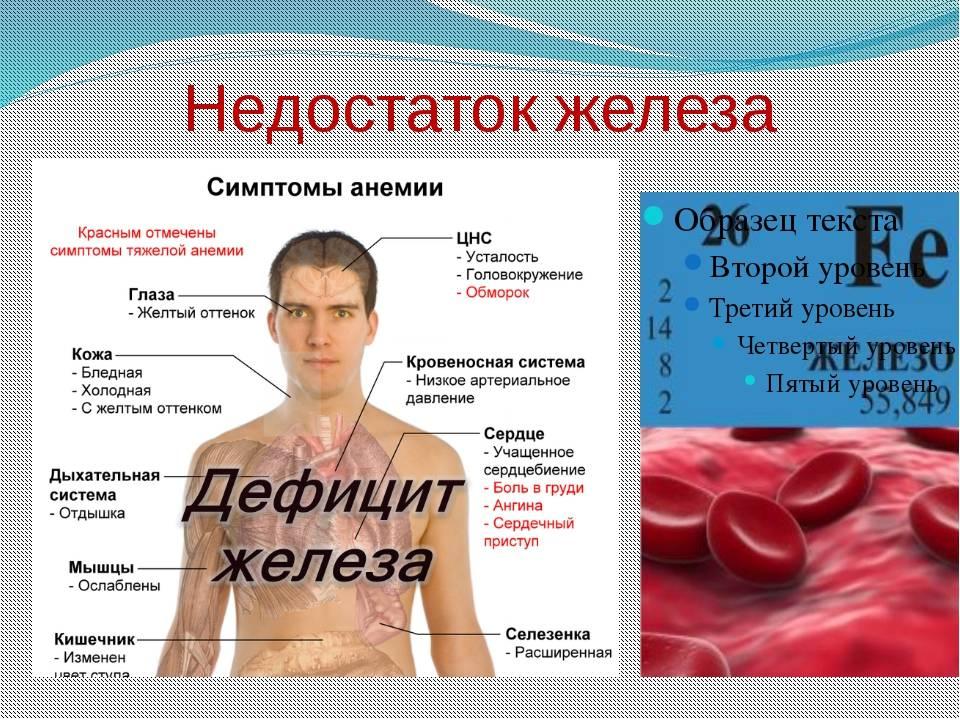 Симптомы, диагностика и лечение анемии   клиника семейный доктор