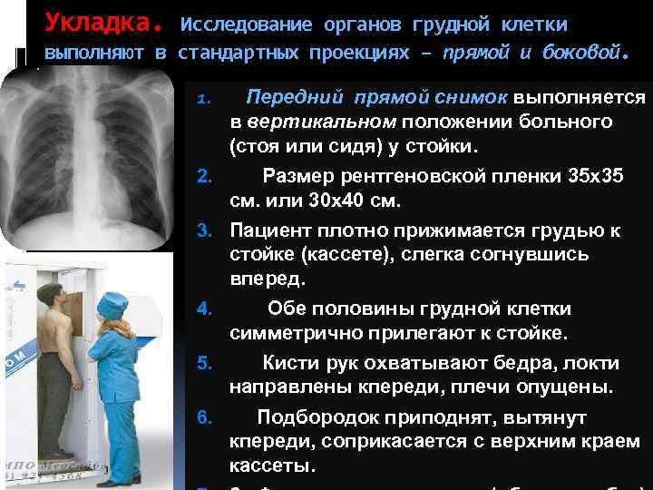 Рентген легких, органов грудной клетки ребенку и взрослым — цены, отзывы