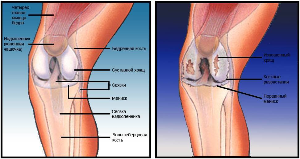 Болят колени при приседании и вставании: причины, диагностика и лечение