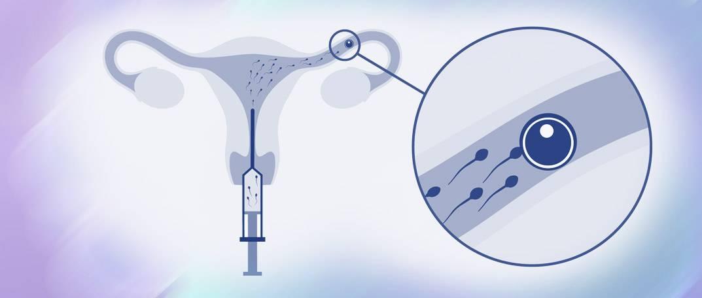 Гистероскопия перед эко — зачем ее проводят