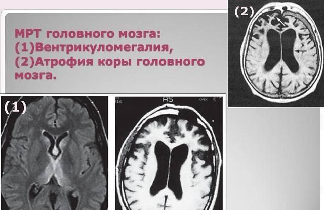 Узи головного мозга для детей и новорожденных: когда делают, что показывает?