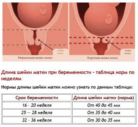 Изменения во время месячных в женском организме