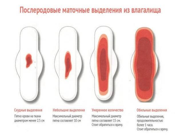 Выделения после родов (лохии): норма и патология - после родов - детская клиническая больница г. улан-удэ